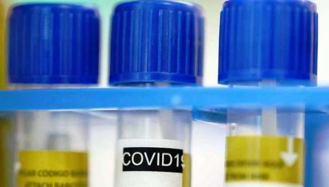 Espírito Santo registra 800 novos casos por Covid-19; total de infectados ultrapassa 285.6 mil